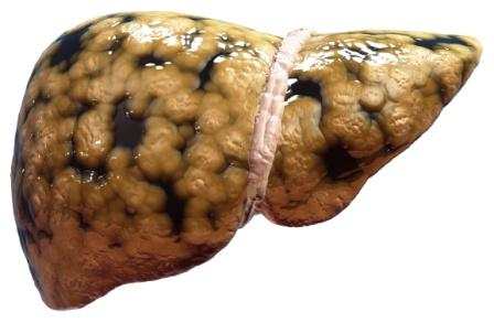 Fatty Liver: Symptoms, Ayurvedic Treatment, Remedies, Tips