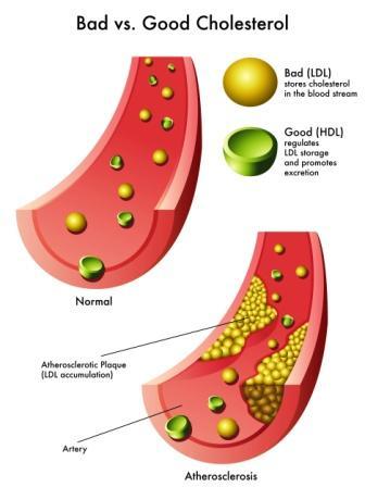 Hypercholesterolemia: Causes, Symptoms, Diagnosis, Prevention