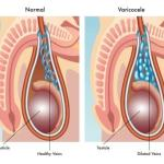 Varicocele: Causes, Symptoms, Differential diagnosis, Treatment