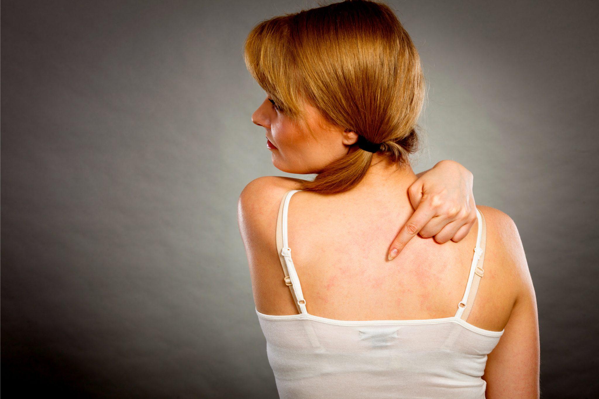 蕁麻疹で背中が赤い女性