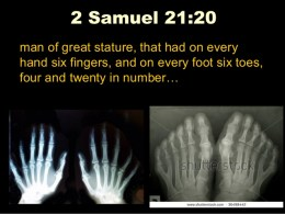 2 Samuel 21:20 - Six fingers and toes on giants, twenty digits total