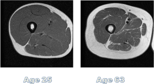 Cross section of thigh muscle, notice what happens to muscle/fat ratio over the years? Plan of attack must change with age. Preserving/building muscle is essential.