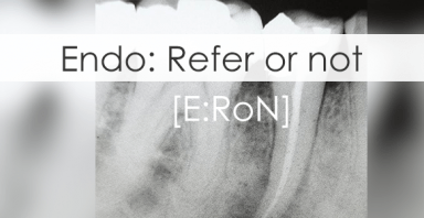 Refer-or-Not to endodontist: Assess the difficulty of an endo case