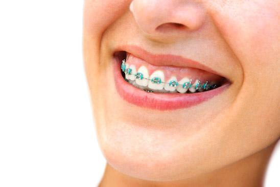getting braces on