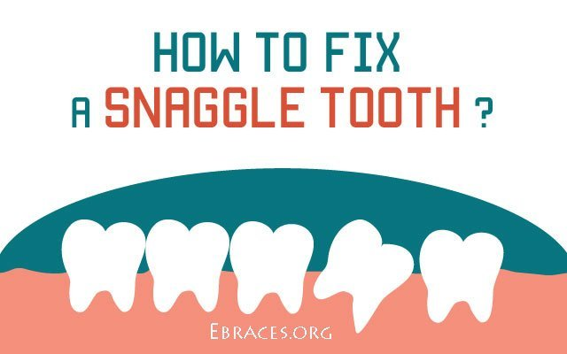 how to fix a snaggle tooth