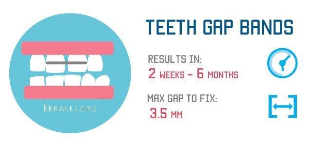 teeth gap bands