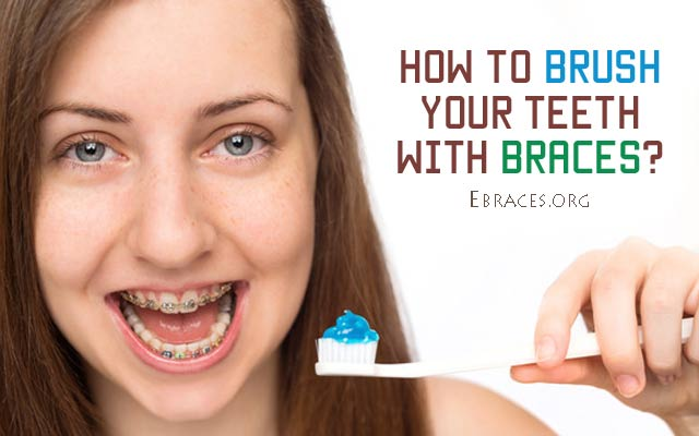 how to tell if your teeth are overcrowded