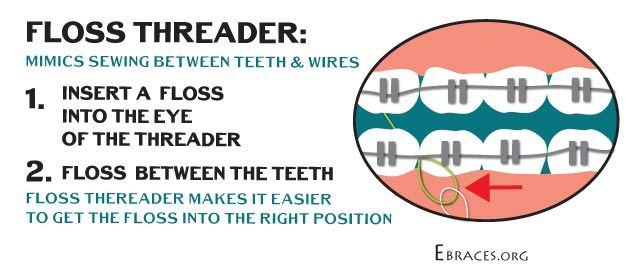tips for flossing with braces