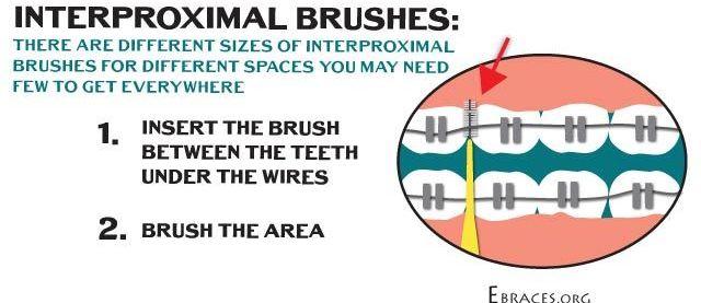 interproximal brushes for braces