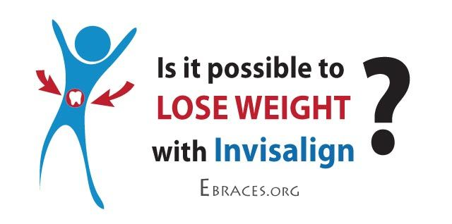 Invisalign and weight loss