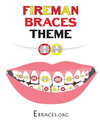 Why You Need The Best Braces Colors (Very Important)   All ...
