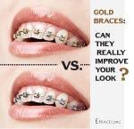 gold braces reviews