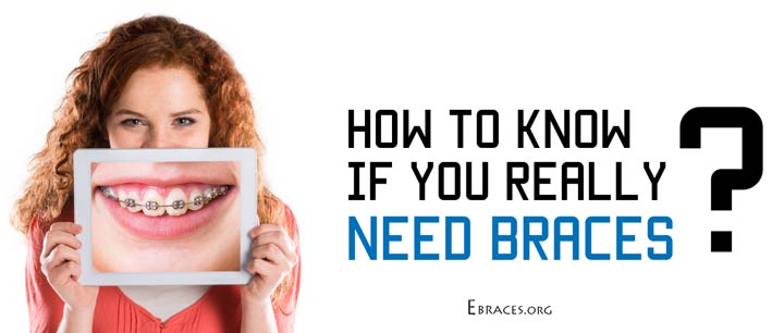 How to Know If You Really Need Braces