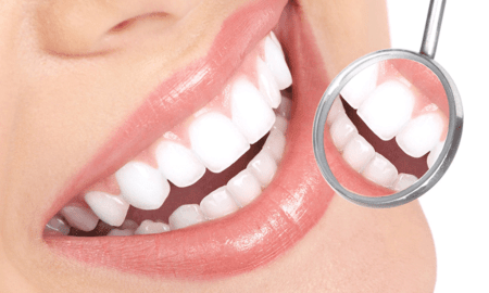 6 Natural Remedies For Reduce Dental Plaque