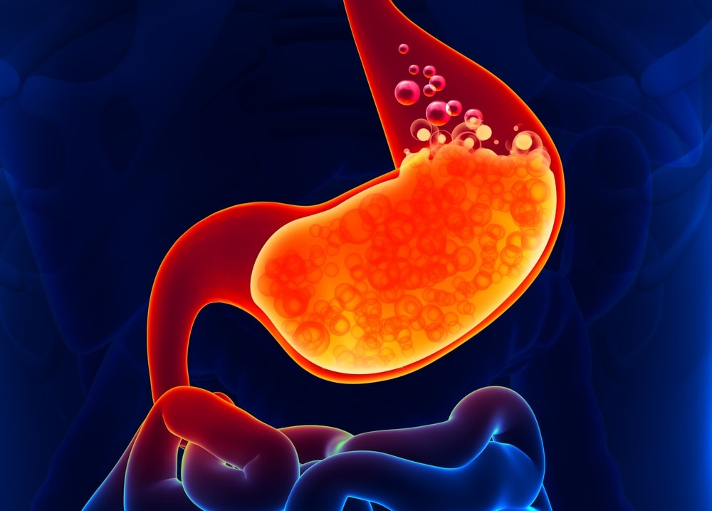 Top Tips To Treat Gastric Acidity On Your Own ebuddynews