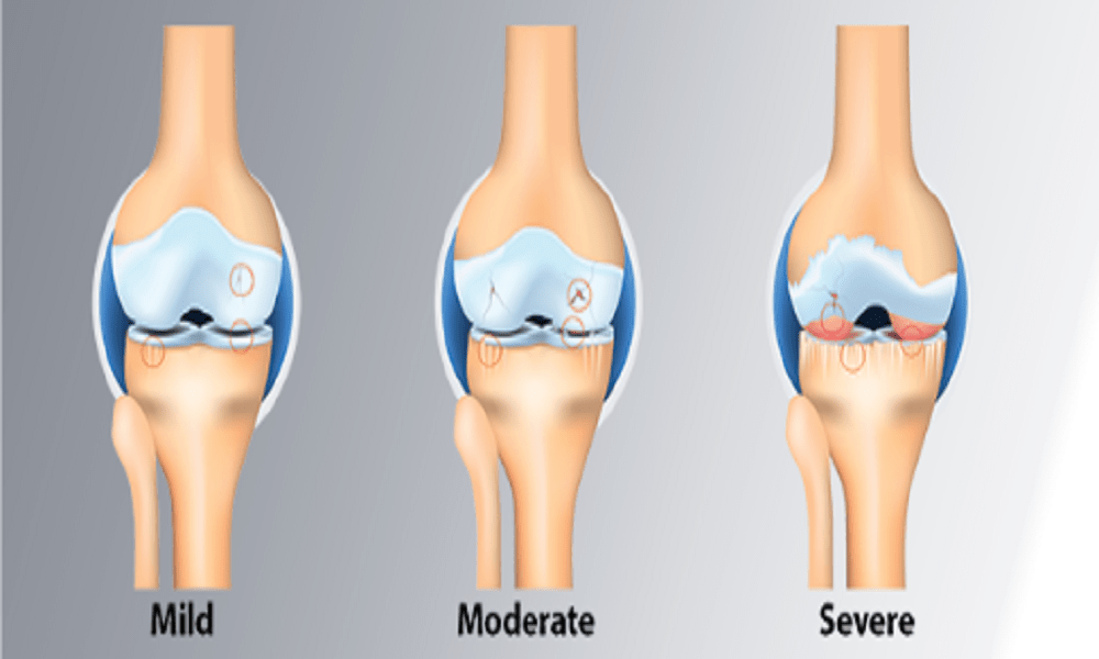 Stages Of Knee Osteoarthritis - eBuddy News