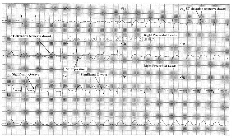 DSAE STEMI Review, Mod 1: Examples of Posterior & Right