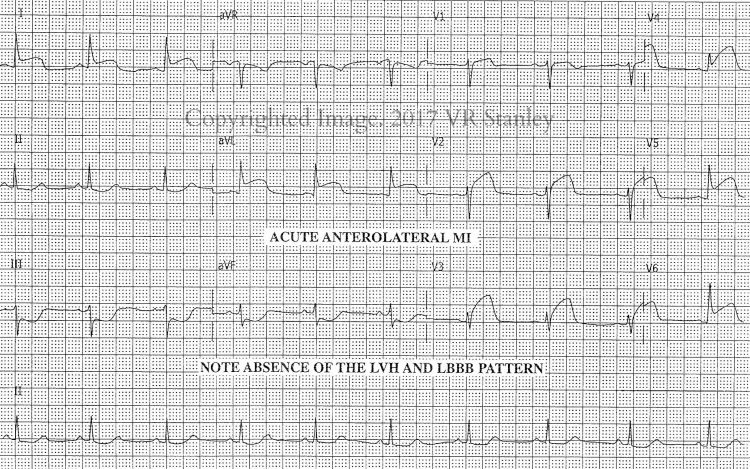 DSAE STEMI Review, Part 1: Classic AnteroLateral