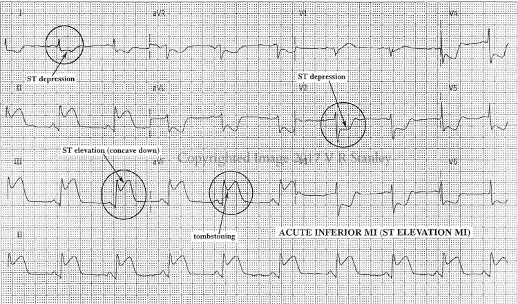 DSAE Searching for the STEMI: Classic Inferior MI Pattern