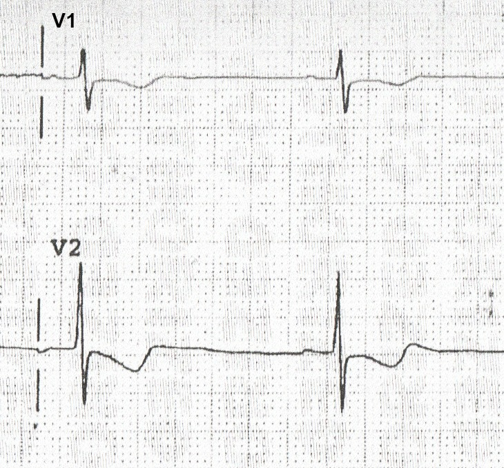 DSAE STEMI Review, Mod 1: RV & Posterior STEMI Patterns