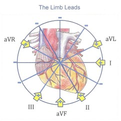 4 Lead Ekg Placement Diagram Frog Dissection Labeled Heart Art Page 3 Ecg Guru Instructor Resources