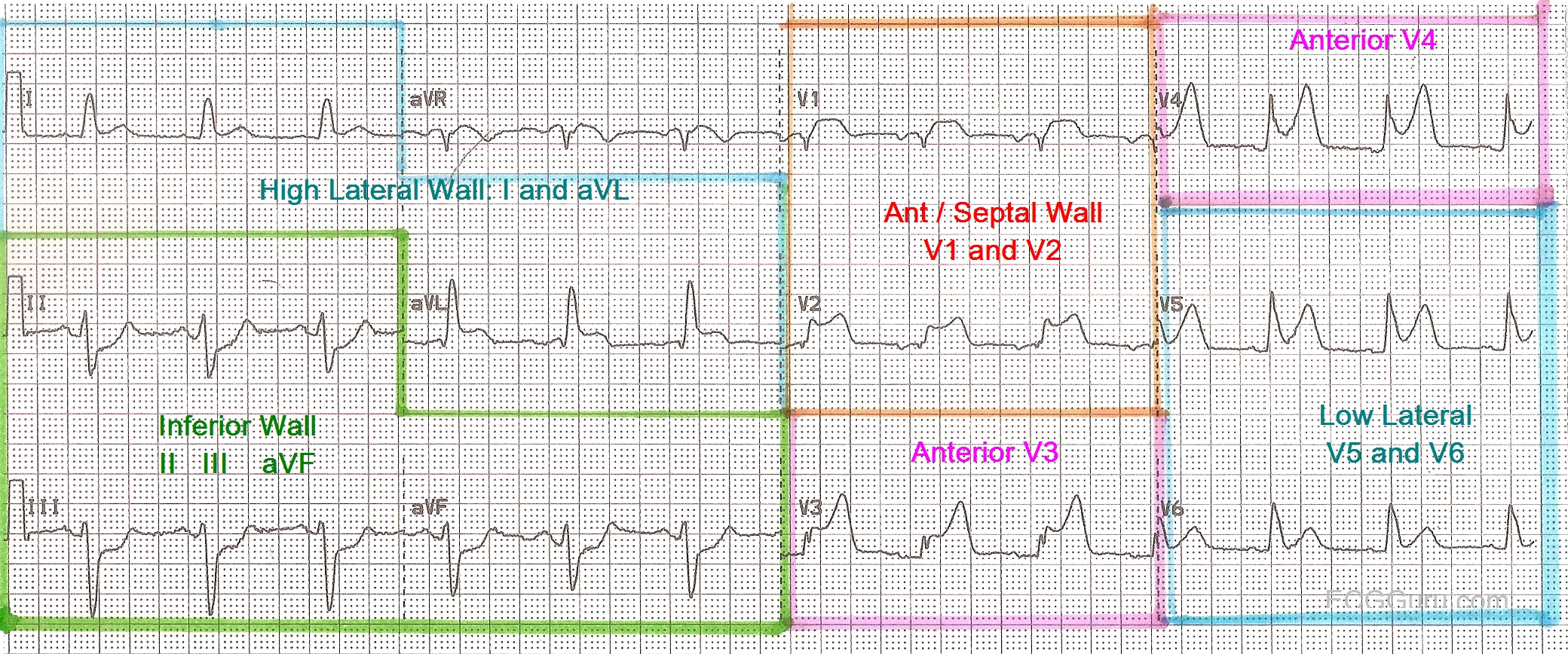 Mapped 12 Lead Ecg Images