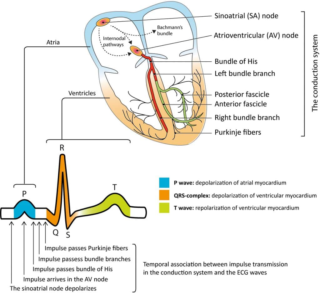 Clinical Electrocardiography And Ecg Interpretation Ecg