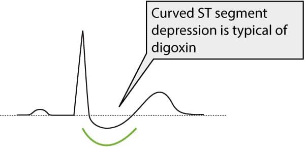 Figure 1. ST segment depression due to digoxin treatment
