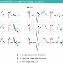 Labeled Ekg Diagram Bus Bar Wiring Left Bundle Branch Block Lbbb Ecg Criteria Causes Management Figure 2 At Two Different Paper Speeds