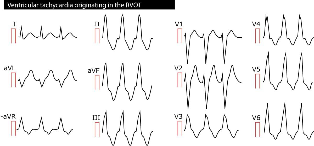 Ventricular tachycardia (VT): ECG criteria, causes