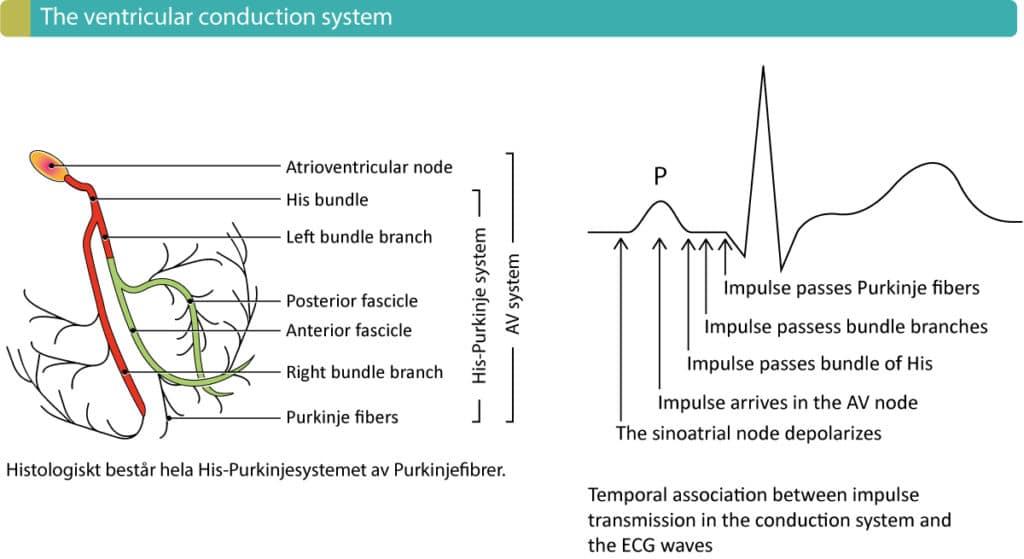 heart diagram nodes ford serpentine belt 2002 overview of atrioventricular (av) blocks – ecg learning
