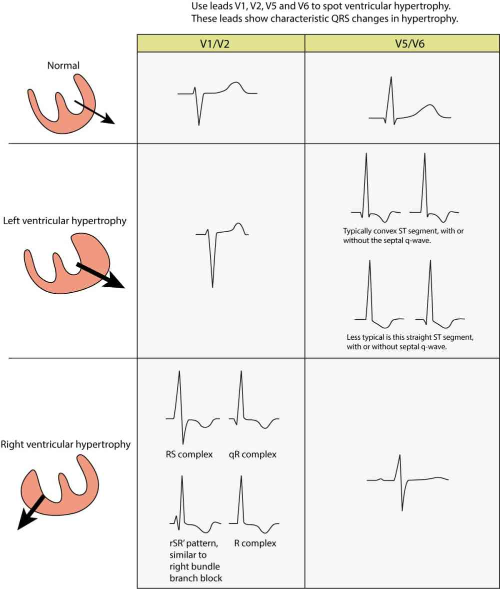 medium resolution of ecg changes seen in left ventricular hypertrophy lvh and right ventricular