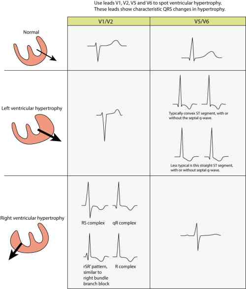 small resolution of ecg changes seen in left ventricular hypertrophy lvh and right ventricular