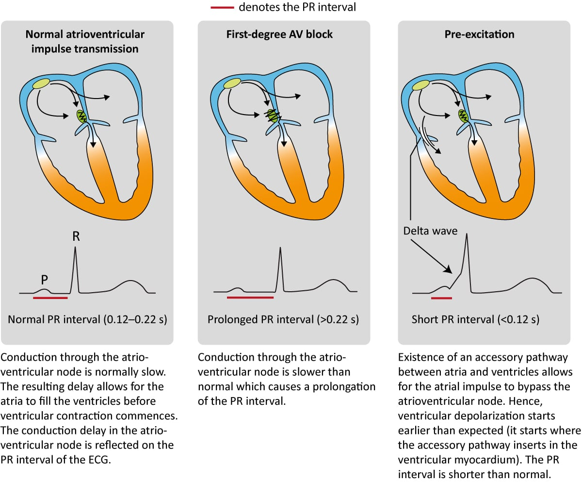 hight resolution of figure 4 impulse transmission from the atria to the ventricles the pr interval reflects