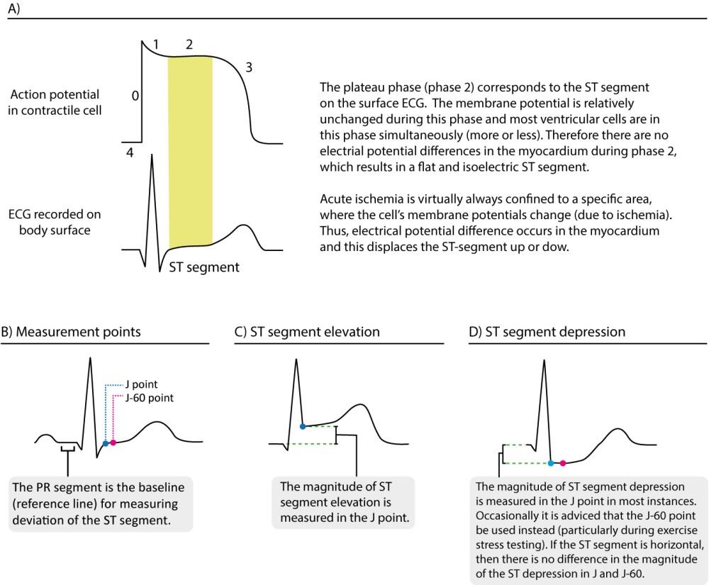 medium resolution of figure 13 st segment elevation and depression
