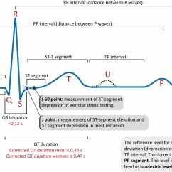 Labeled Ekg Diagram Dc Motor Wiring 3 Wire Online Ecg Interpretation Characteristics Of The Normal P Wave Qrs Waves