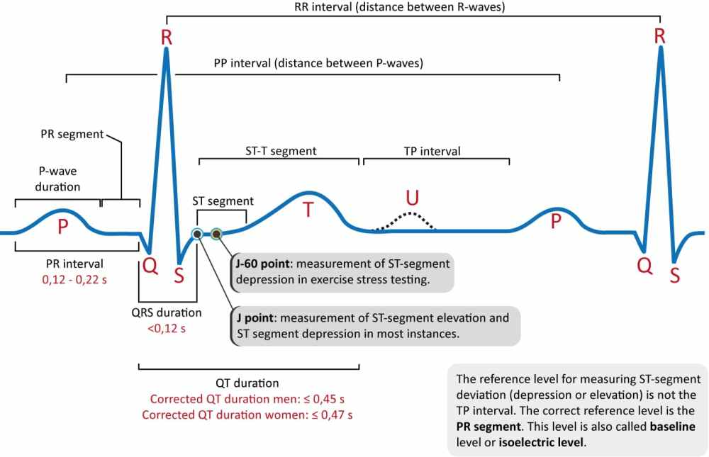 medium resolution of figure 1 the classical ecg curve with its most common waveforms important intervals and