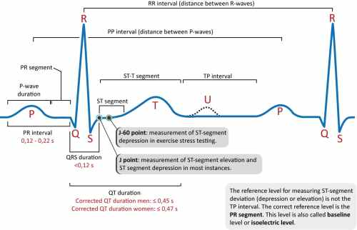small resolution of figure 1 the classical ecg curve with its most common waveforms important intervals and