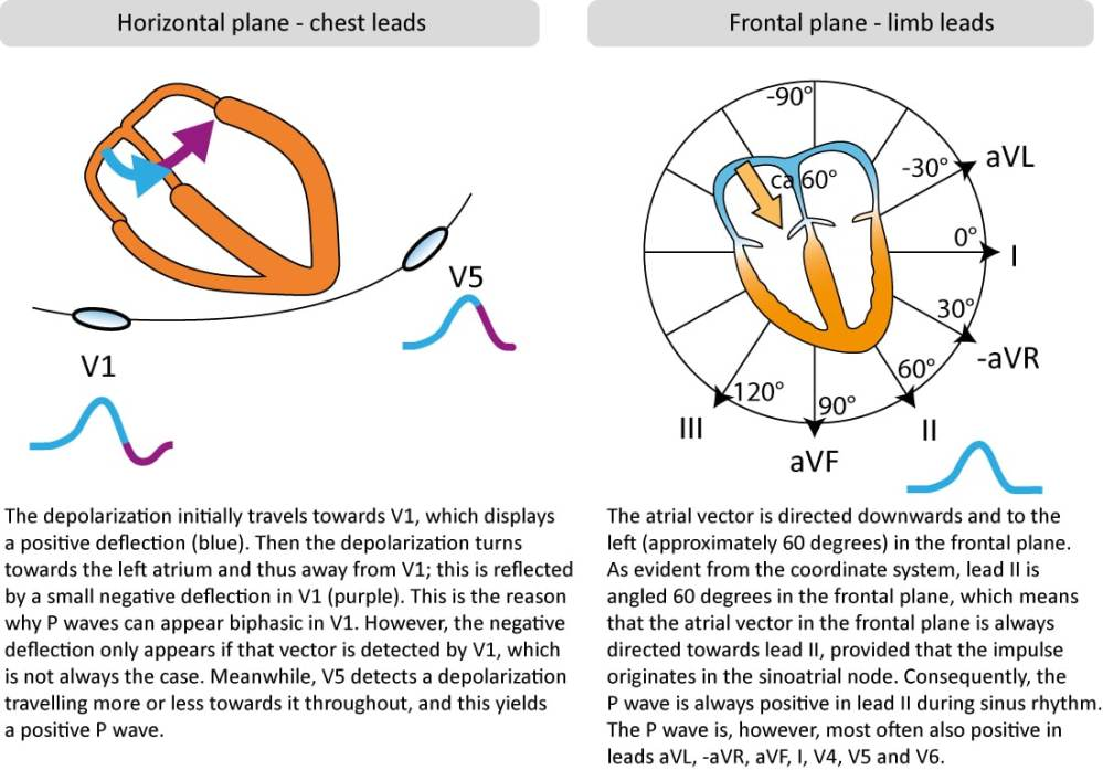 medium resolution of p wave morphology in chest and limb leads