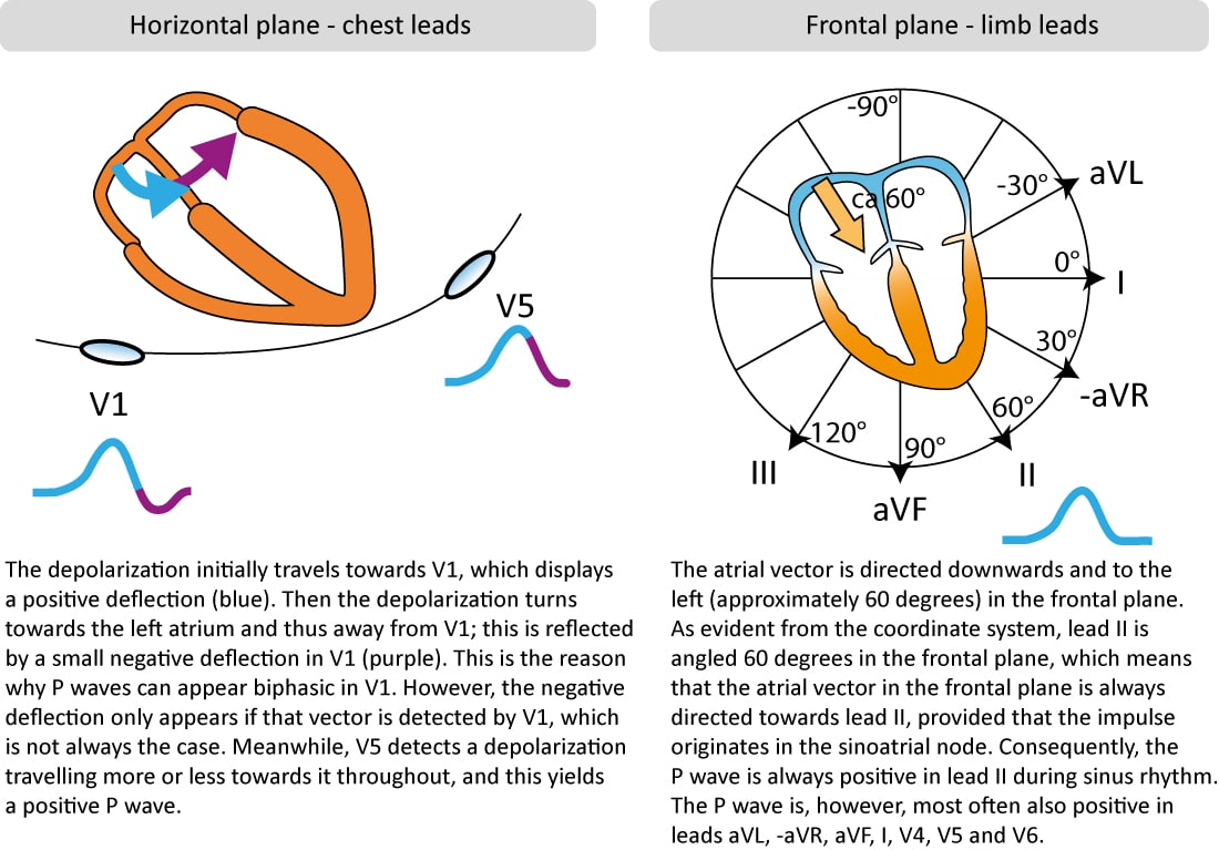 hight resolution of p wave morphology in chest and limb leads