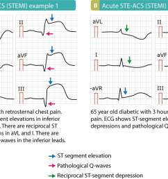 stemi st elevation myocardial infarction diagnosis criteria ecg management ecg learning [ 1200 x 808 Pixel ]