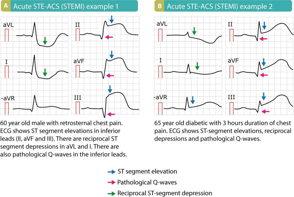 medium resolution of stemi st elevation myocardial infarction diagnosis criteria ecg management ecg learning