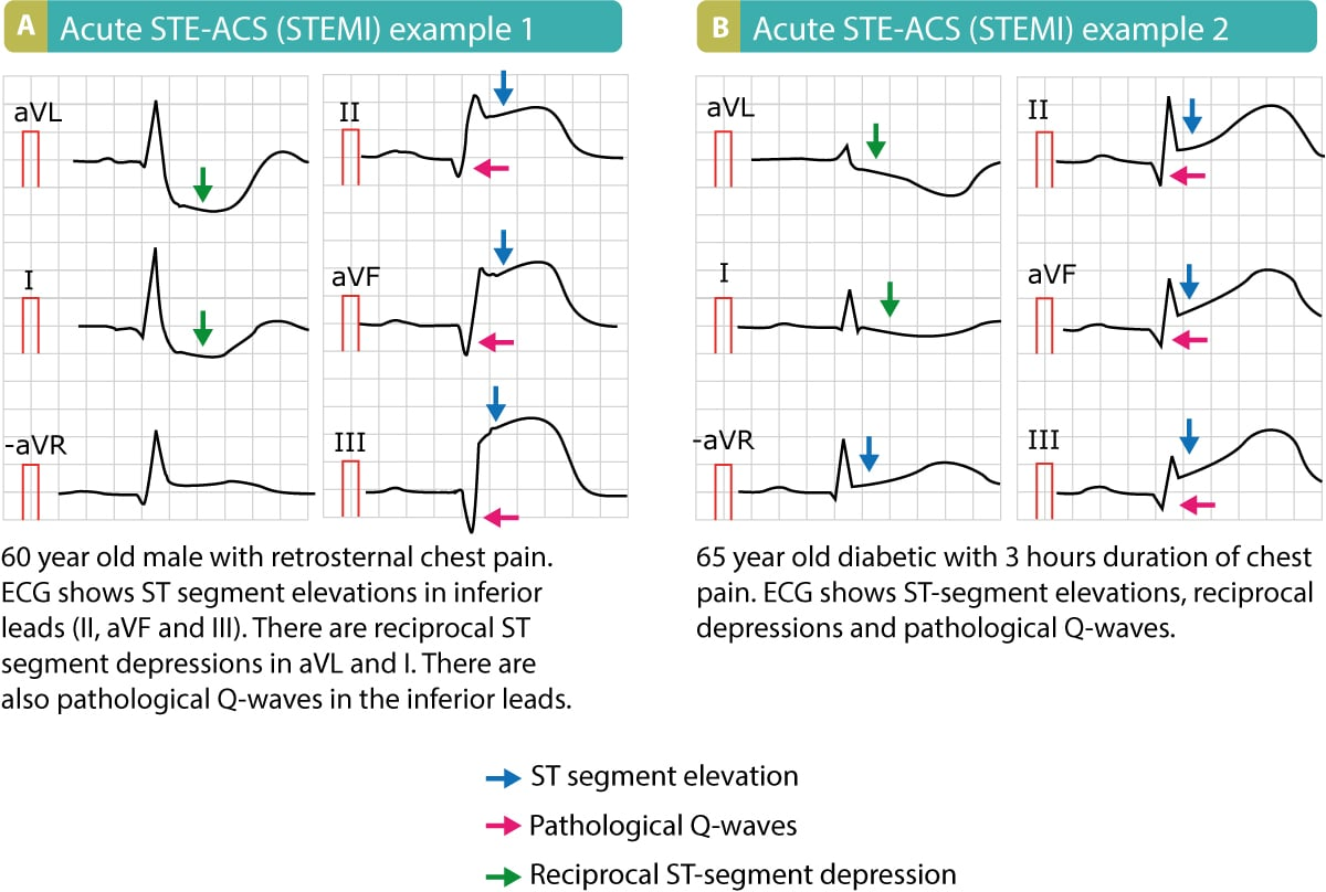 hight resolution of stemi st elevation myocardial infarction diagnosis criteria ecg management ecg learning
