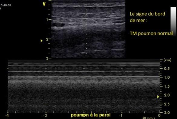 Signe du bord de mer ou TM pulmonaire Normal