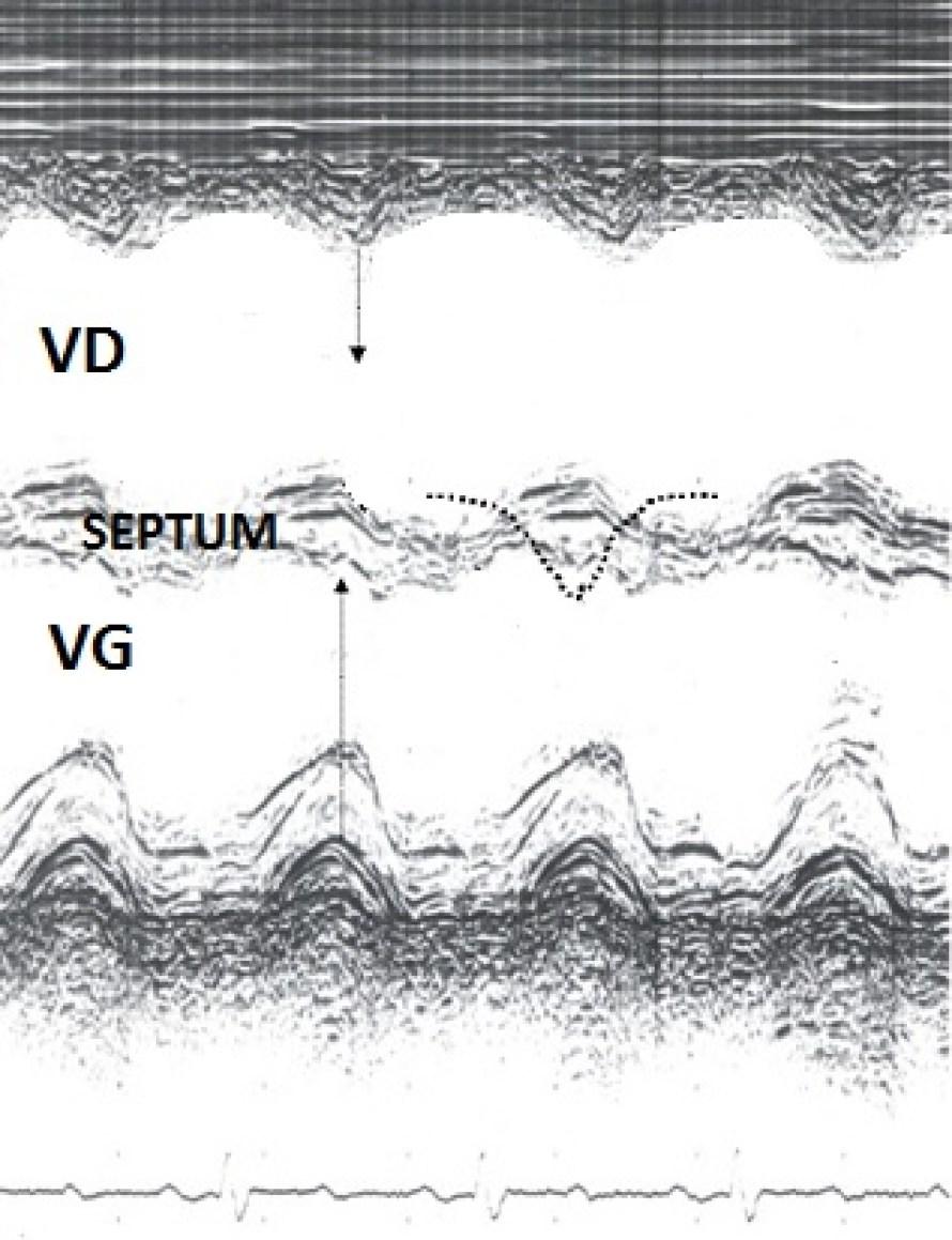 tm-septum-paradoxal
