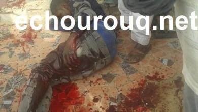 صورة عصابة مسلحة تعتدي بالسكاكين على شاب  وتتركه ينزف في الشارع العام بدار النعيم (صورة)
