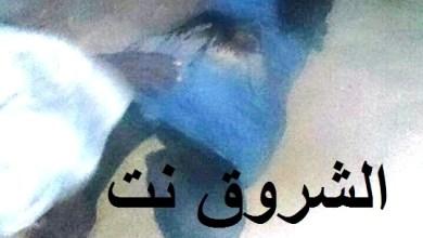 صورة عرفات :الإعتداء على شاب بسلاح أبيض وتتركه ينزف أمام محله(صورة الضحية )
