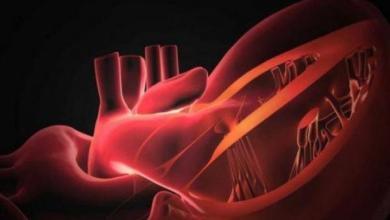 صورة عملية جراحية على القلب قد تنقذ حياة آلاف البشر