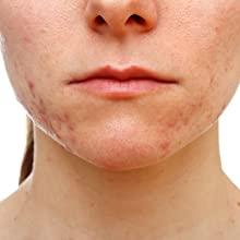 traitement naturel acné-eclatdebulle.fr