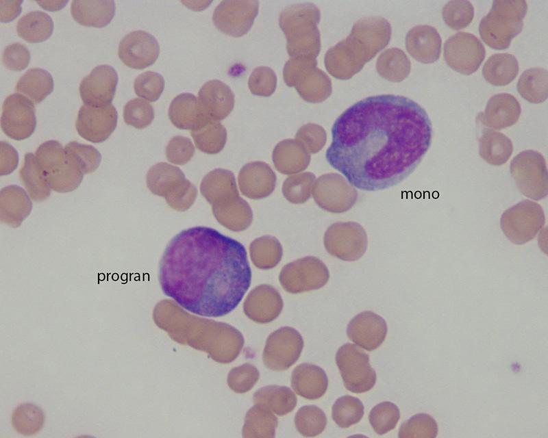 monocyte Archives   eClinpath